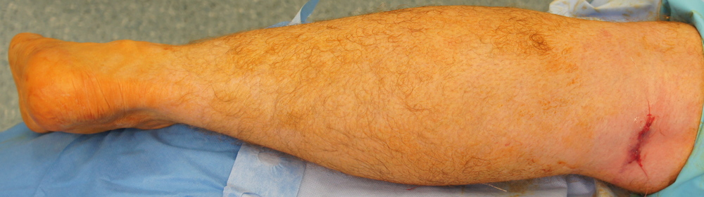 Clinical photograph, in this picture a small incision has been used to lengthen the Gastoc muscle behind the knee.