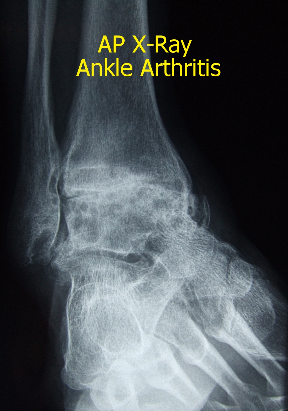 X-ray showing severe arthritis of the ankle joint (front)