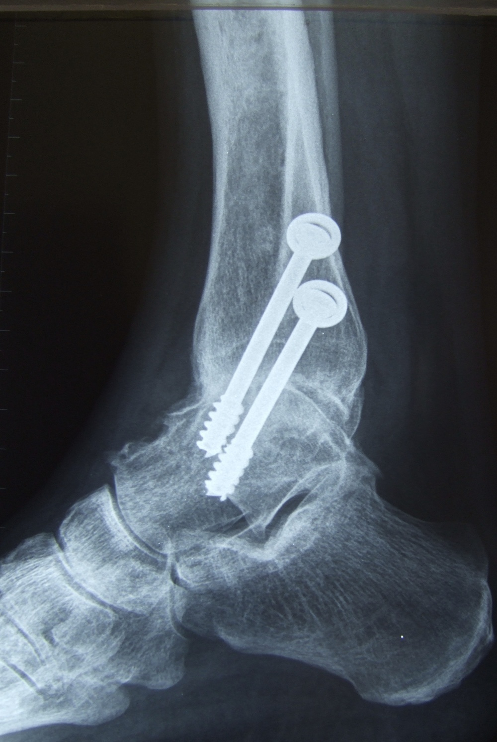 X-rays of ankle     after ankle fusion with 2 screws across the ankle (side)