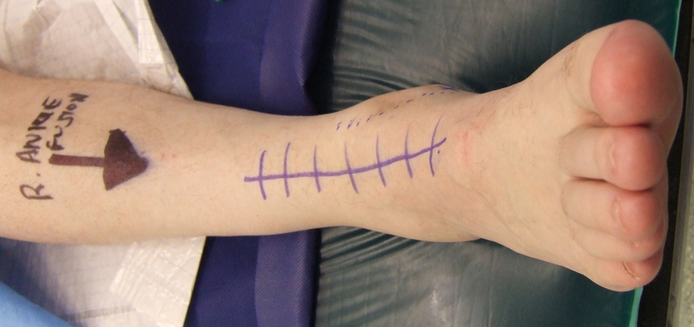 The incision for an open ankle fusion or Ankle replacement  marked off before surgery and x-rays after a fusion.