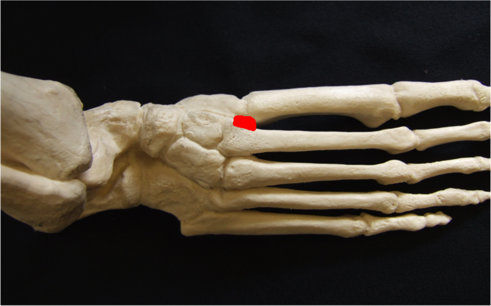 Model of the foot, the red mark indicates the 'Lisfranc joint'