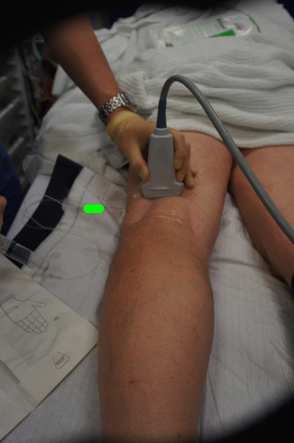 The anaesthetist uses an ultrasound scanner to see the nerves so that they can be accurately blocked.