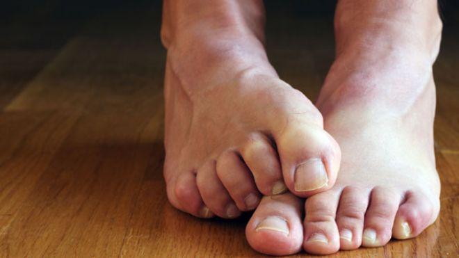 foot_cringing_640.jpg