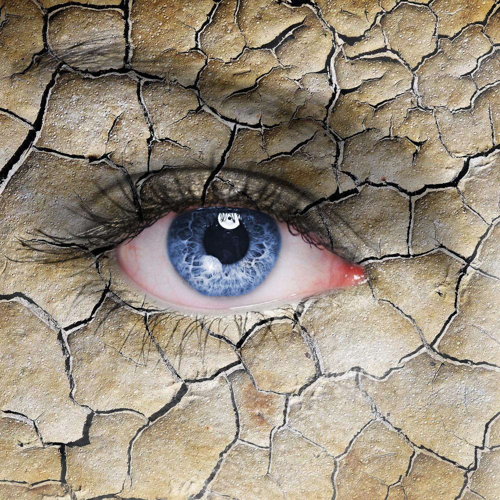 dry eye austin