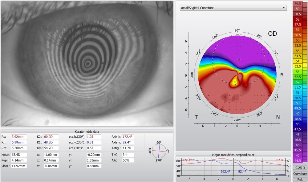 keratoconus topography