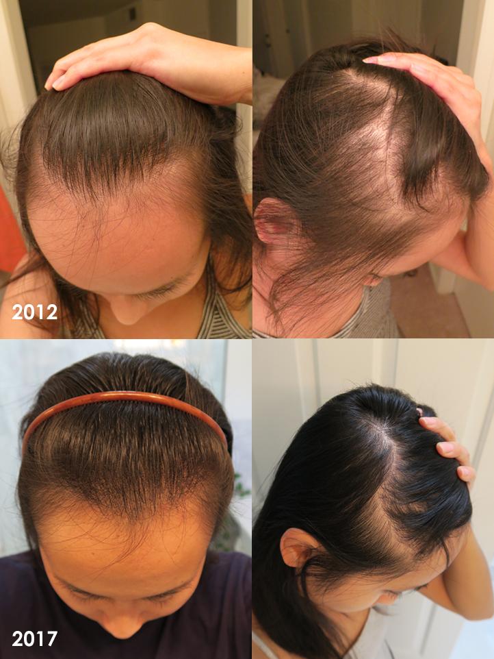 my-hair-loss-story-2.jpg
