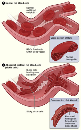 Red blood cells with abnormal Hemoglobin (HbS) can form into a sickle shape and occlude blood vessels (image source)