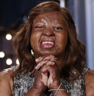 2017 America's got talent finalist, kechi, will provide entertainment at 2018 imagine awards!