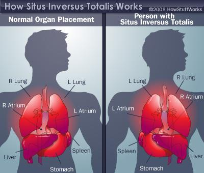 Source of Picture:  http://science.howstuffworks.com/life/human-biology/reversal-of-organ1.htm    This picture shows the normal organ placement specifically compared to the positioning of a person with Situs Inversus Totalis.