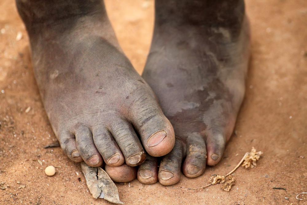 Sandy African Feet