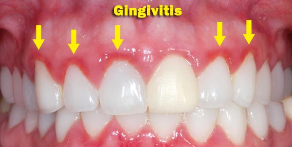 gingivitis-4.png