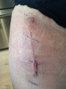 My ugly scar (and some left over marker from the surgery -- I told you, I haven't been showering much).