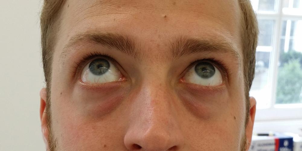 Ted har omfattande mörka ringar/påsar under ögonen.