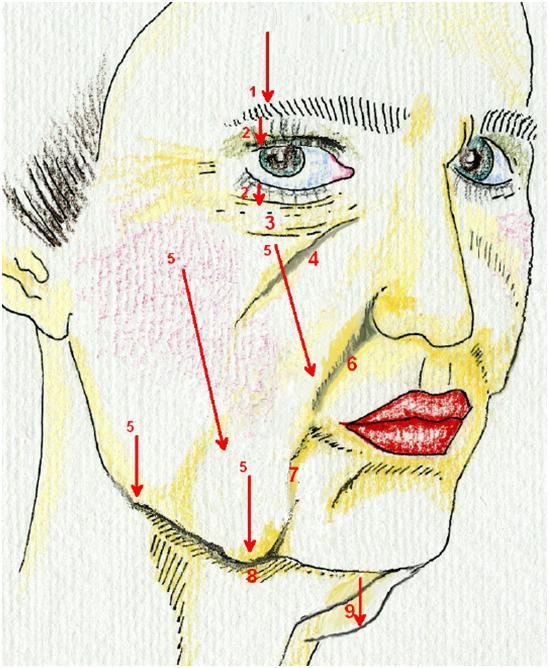 Åldring och volymförändringar av ansiktet visar att ofta är källan till Nasolabial Veck (#6) förlorad volym i kinder och Tear Trough  som krypit ner (#5) och samlat sig runt munnen och käklinjen.