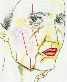 Bild 1. Föråldring av ansikte