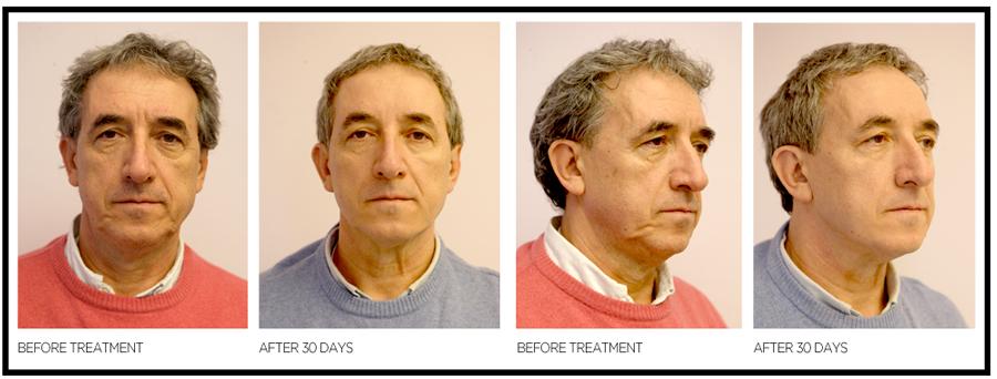 Bilder före och efter 30 Dagar med Silhouette Soft ® Ansiktslyft utan kniv