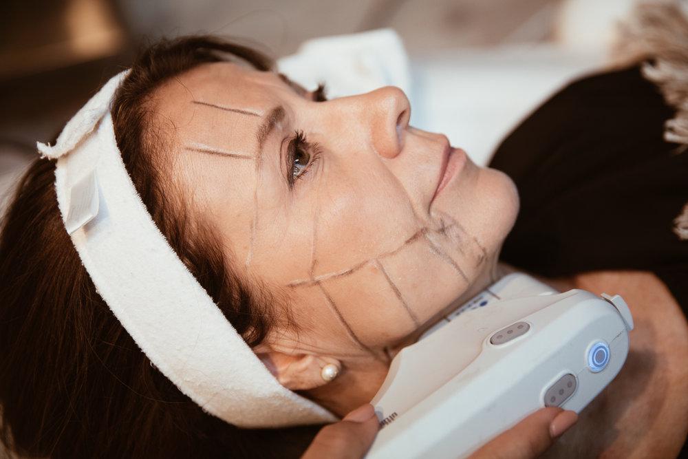 Bästa ansiktslyft utan kirurgi