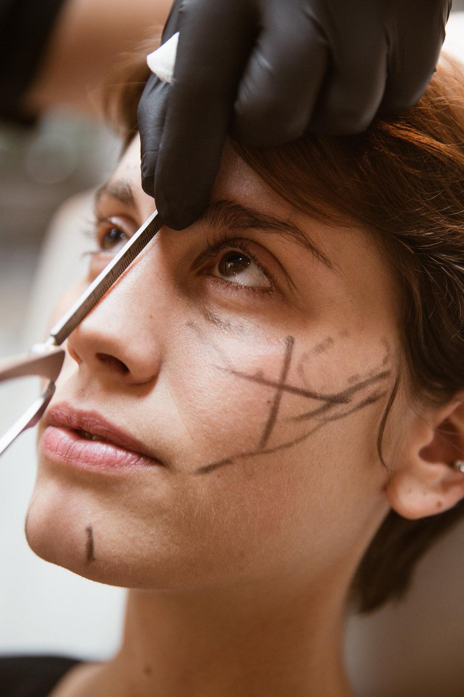 Näskorrigering har blivit allt vanligare och det behövs endast en liten mängd för att skapa illusionen av att näsan blivit mindre eller större beroende på var man injicerar. -