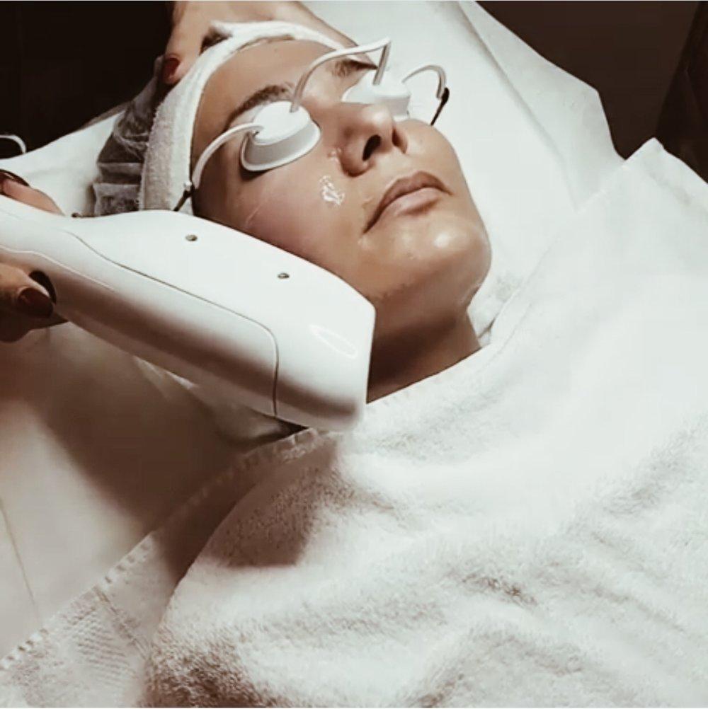 IPL BEHANDLING   Pigment absorberar ljus och omvandlas till värme i de cellerna som innehåller för mycket pigment. Denna behandling passar både för ansikte, hals, dekolletage och händer. Man får inga större besvär av behandlingen, men man kan få lätt hudrodnad och värmekänsla det första dygnet. Om det uppstår skorpor eller svarta prickar, ska dessa falla bort av sig självt. Undvik att sola 4-6 veckor före behandling och även under behandlingstiden tills huden är återställd. Läs mer  här