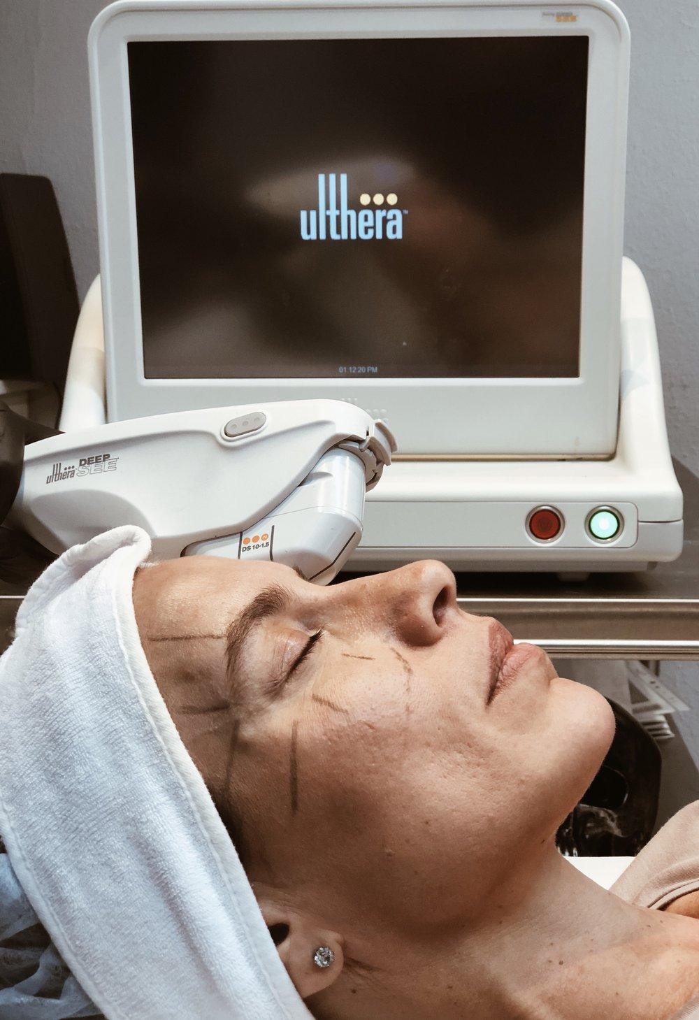 ULTHERAPY   Ultherapybehandlingen är den enda icke-invasiva behandlingen som är godkänd av U.S.A. FDA för lyft av huden vid ögonbrynen.  Ultherapy® tillför fokuserad ultraljudsenergi på samma nivåer i huden som kirurger inriktar sig på vid plastikkirurgi (t.ex. kirurgisk ansiktslyft), utan att skära eller skada hudens yta. Denna energi initierar kroppens naturliga reaktion att stimulera tillväxt av ny kollagen och stärka svag kollagen.  Läs mer  här