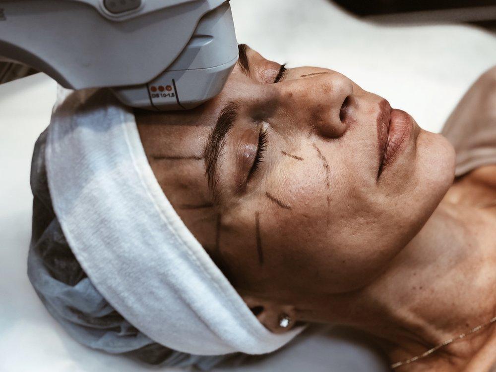RESULTAT    Vissa patienter upplever initial effekt direkt efter behandlingen, vilket kan mätas till ca. 30 % av slutresultatet, men de slutgiltiga resultaten kommer att visa sig över en period på 2-6 månader. Ny kollagen byggs upp vilket gradvis lyfter och stramar upp huden.