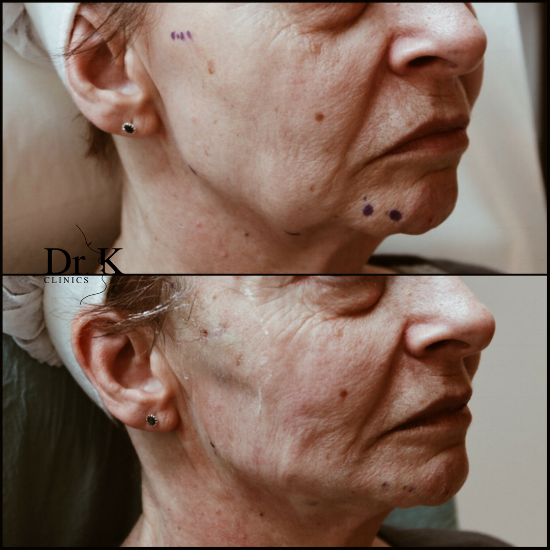 Bilden ovan är före behandlingen och bilden nedan är direkt efter behandlingen.