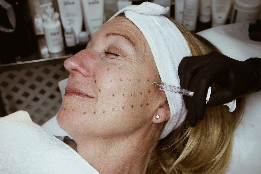 SKINBOOSTER   Skinbooster är behandling som återfuktar huden på djupet, förbättrar hudens kvalitet och ger huden extra lyster. Behandlingen går till så att man injicerar hyaluronsyra i små mängder tunt under huden. Huden känns fastare samt att linjer och rynkor suddas ut.