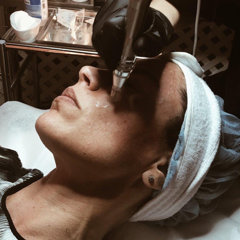 MICRONEEDLING   Microneedling är en fraktionerad nålbehandling som stimulerar hudens egen produktion av kollagen genom att skada huden på ett kontrollerat sätt. Som en naturlig reaktion vill kroppen reparera skadan. Tillväxtfaktorer frigörs och huden börjar producera nytt kollagen. Resultatet blir en föryngring av huden samt en förbättring av hudens struktur och kondition. En microneedling behandling kan även utföras på alla hudtyper/ hudfärger.