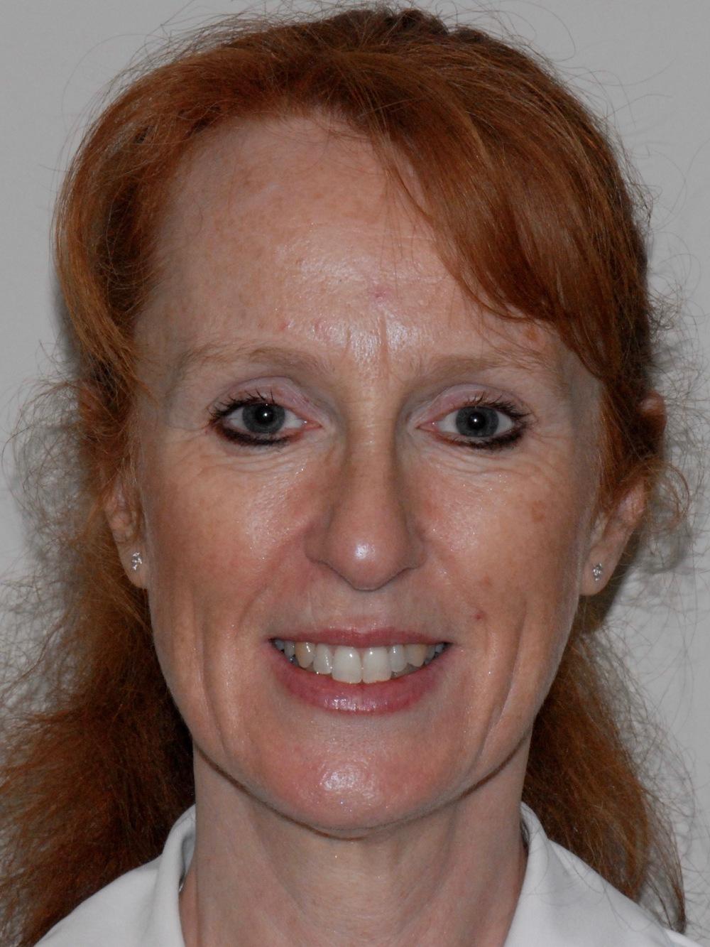 Dental Hygienist   Linda Newman