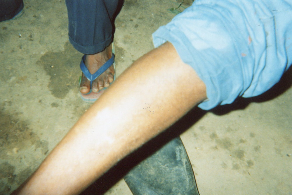 This shows the scar of Mai Mai forced to join armed groups, he was beaten a lot, also he was shot on the leg, he is unable to work.