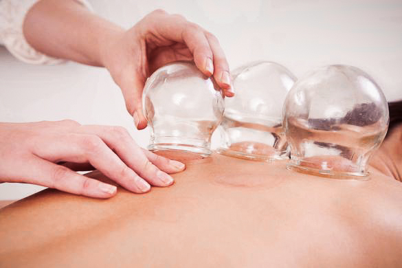_cupping-massage-therapy-featured.jpg