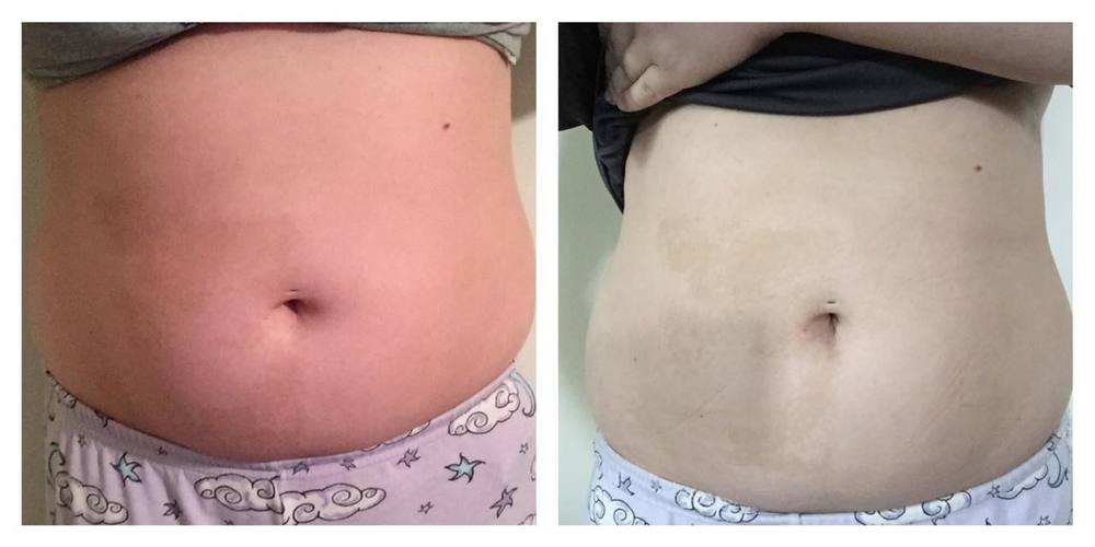 Caity Mets It Works Wrap Results // 3 wraps