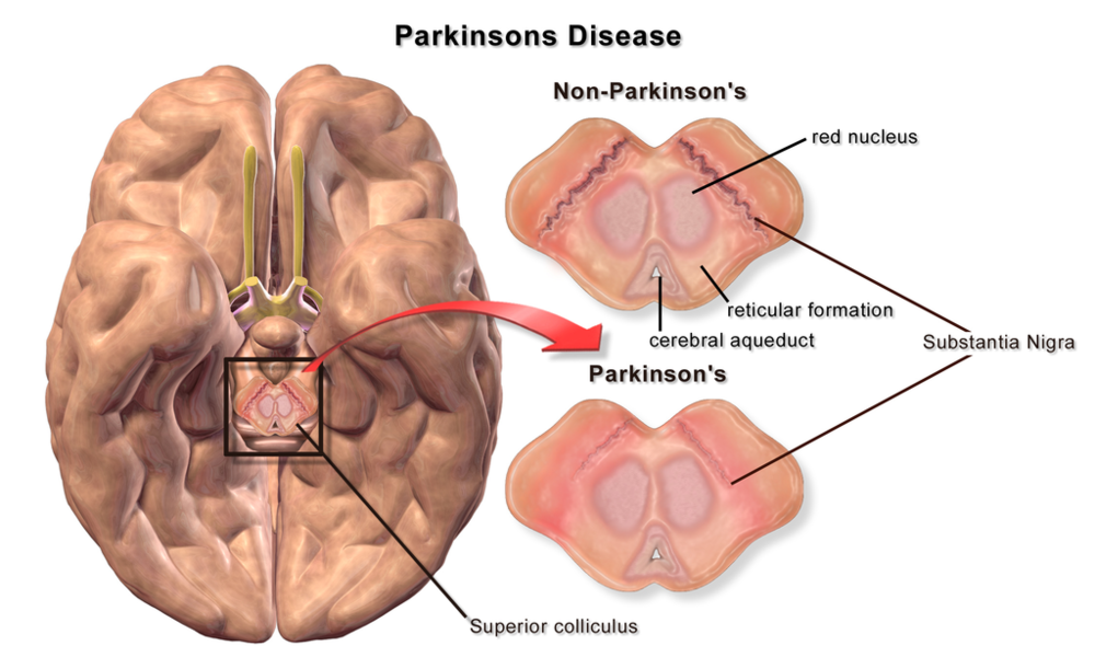 Parkinson's disease is characterized by a loss of dopamine neurons in the substantia nigra region of the brain.
