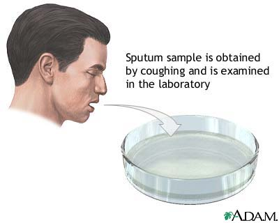 Sputum Sample.jpg