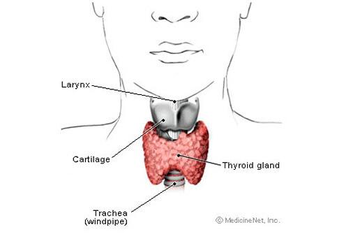 Myxedema Coma Thyroid