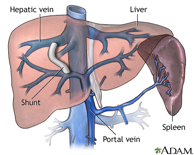 TIPS procedure liver failure