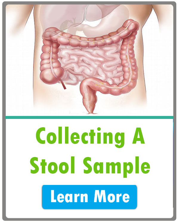 How to Collect a Stool Sample