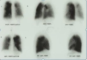 """The ventilation scan is from the same patient. The left lung has preserved ventilation. These findings are classic for CTEPH."" -Pulmonary Hypertension RN"