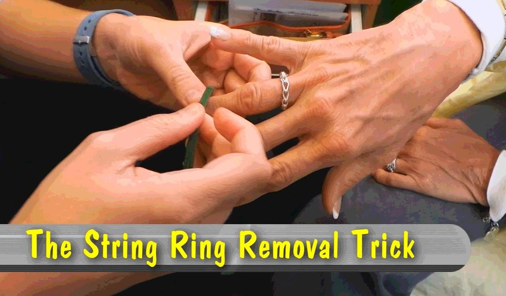 string ring removal trick for nurses