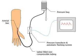 zeroing an arterial line