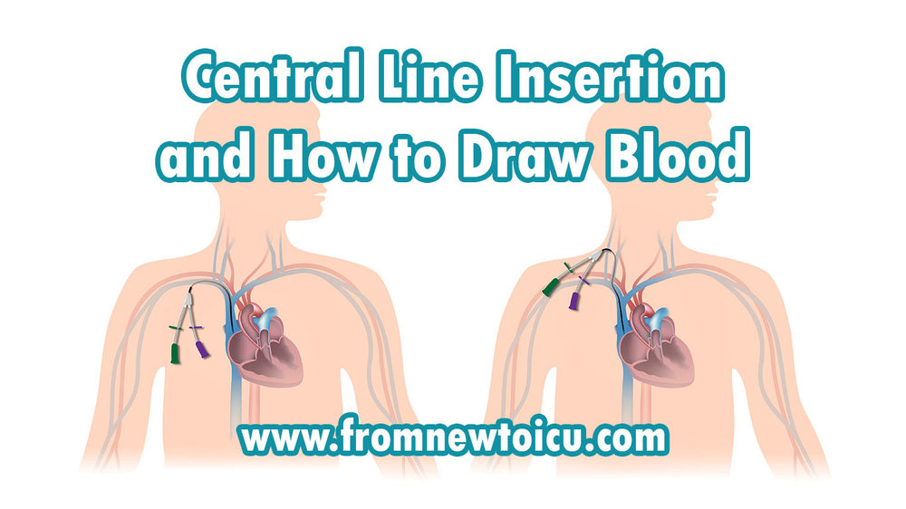 Central Line Insertion and Blood Draw.jpg