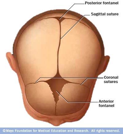 Craniosynostosis.jpg