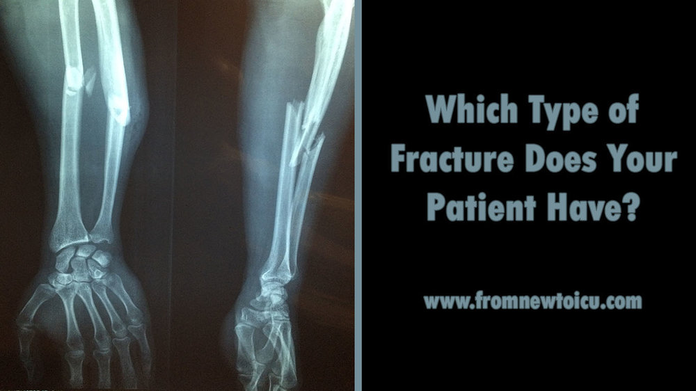 Types Of Fractures From New To Icu