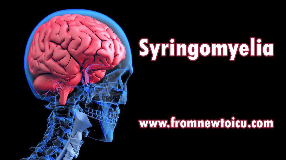 Syringemyelia spinal cyst.jpg