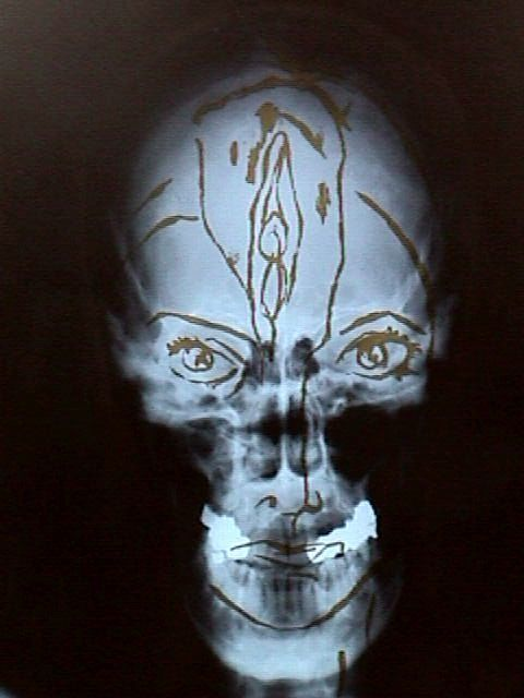 Self portrait, gold paint on X-Ray