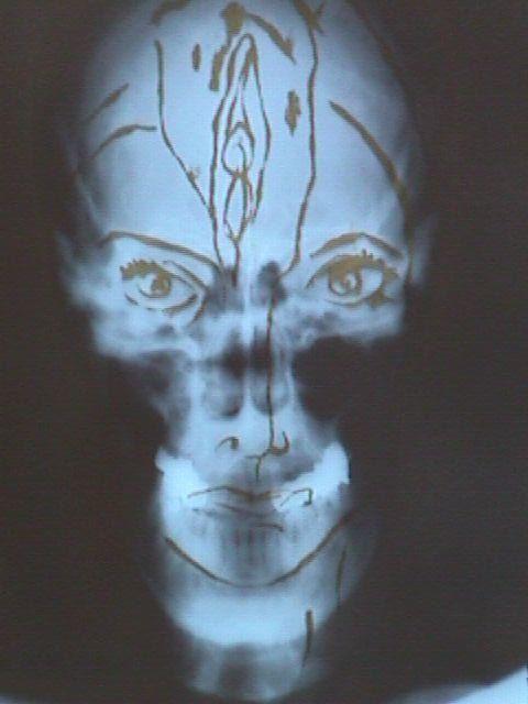 Andree Weschler X ray.jpg
