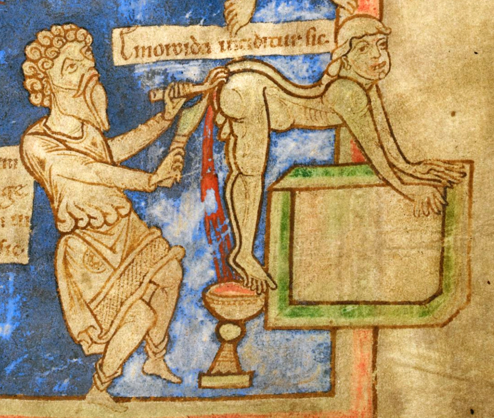 "This fascinating picture depicts the fun times of the madcap middle ages.  Note the grin on the face of the patient getting the ""sword and claw"" treatment for hemorrhoids.  Those were the days."