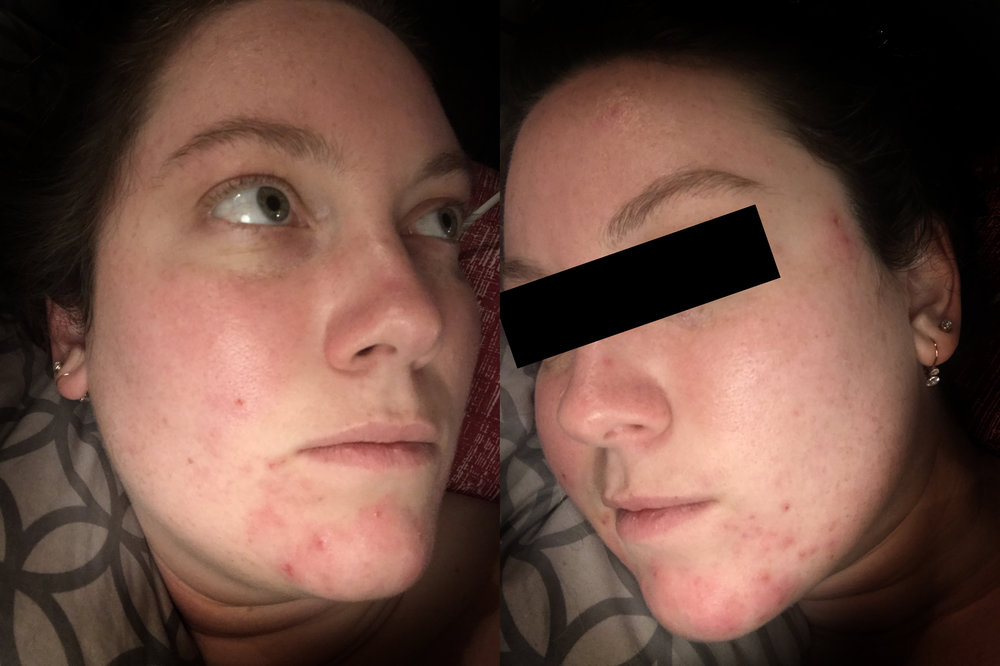 In this photo I am at my absolute worst my skin has ever been. It was in so much pain and my skin was more sensitive than ever. Those samples could not get here soon enough.
