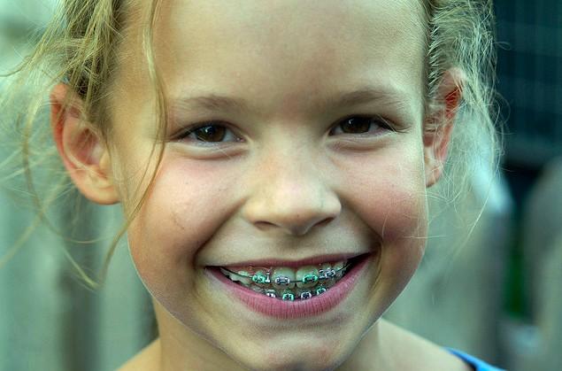 Torrance_Braces_Orthodontics