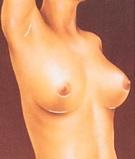 breast_augmentation-4.jpg